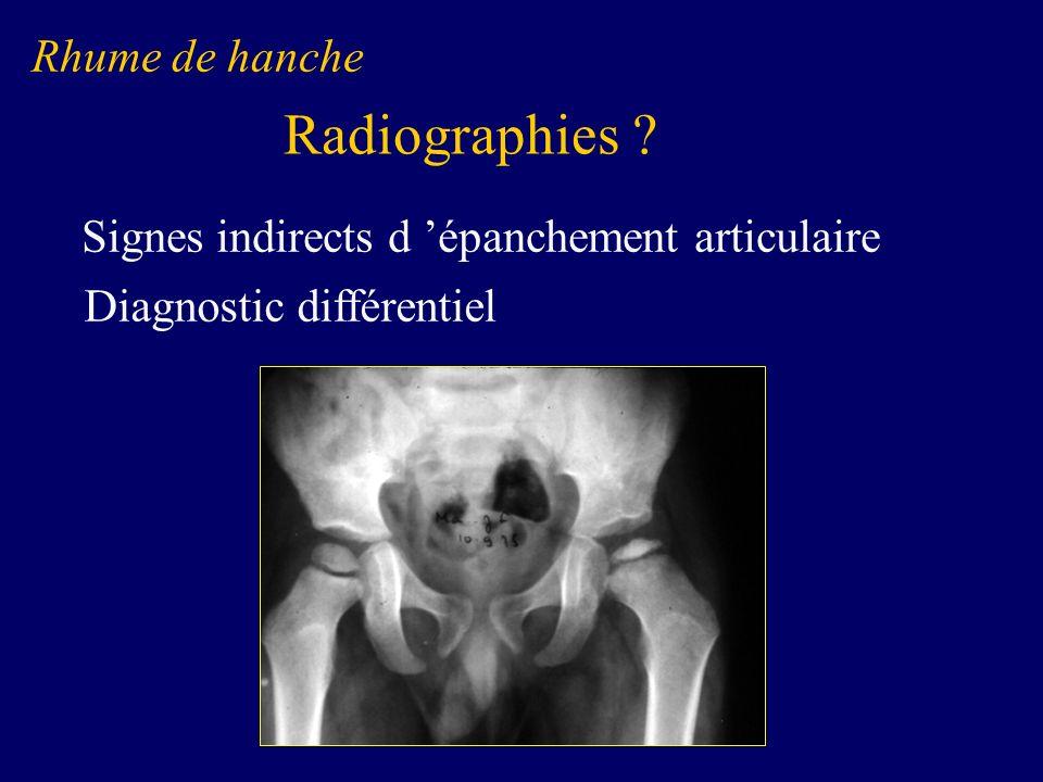 Tumeurs Malignes Ostéosarcome Malin Bilan dextension BIOPSIE +++ Chimiothérapie Chirurgie