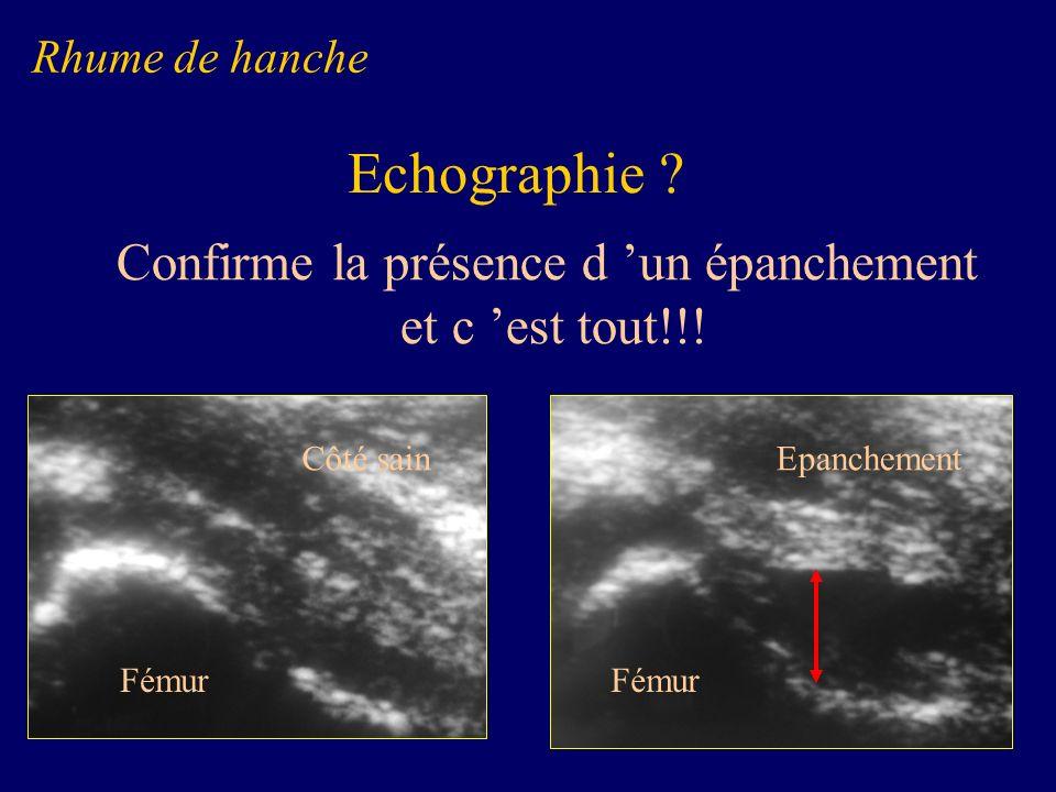 Confirme la présence d un épanchement et c est tout!!! Fémur Côté sain Fémur Epanchement Rhume de hanche Echographie ?