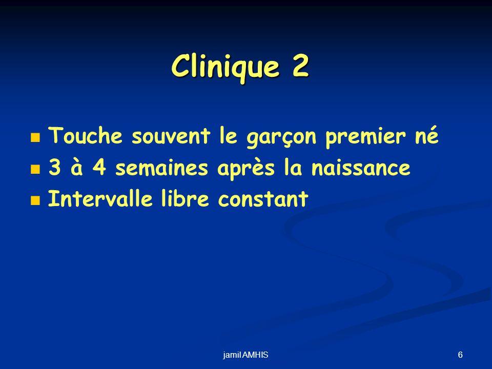 6jamil AMHIS Clinique 2 Touche souvent le garçon premier né 3 à 4 semaines après la naissance Intervalle libre constant
