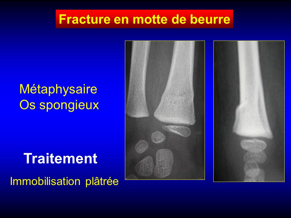 Fracture en motte de beurre Métaphysaire Os spongieux Traitement Immobilisation plâtrée