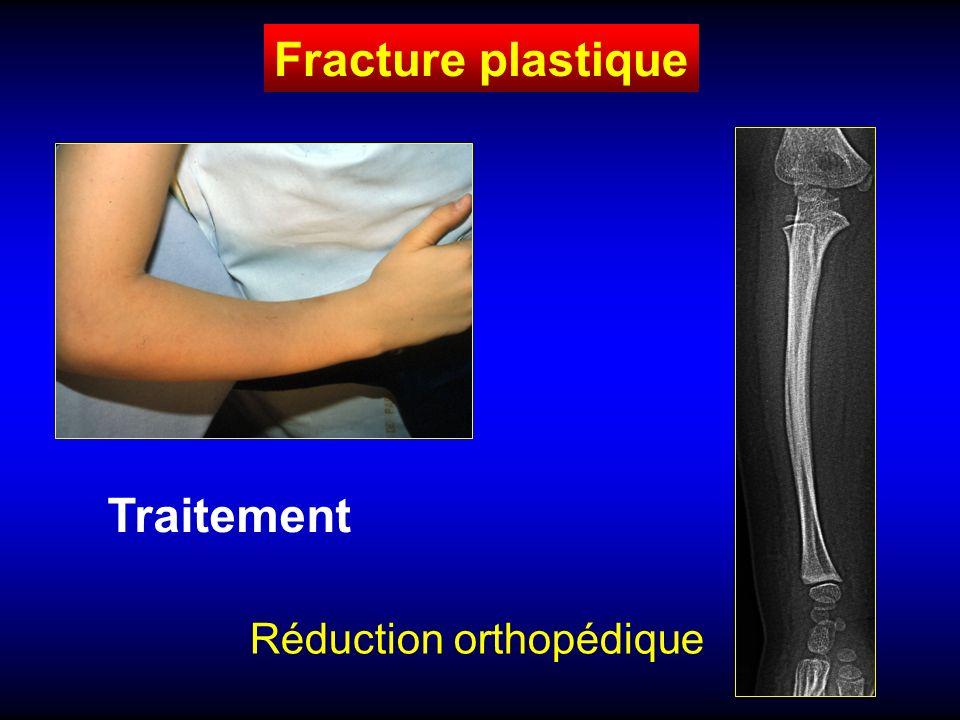 Fracture en bois vert Diaphysaire fracture incomplète Traitement Réduction orthopédique