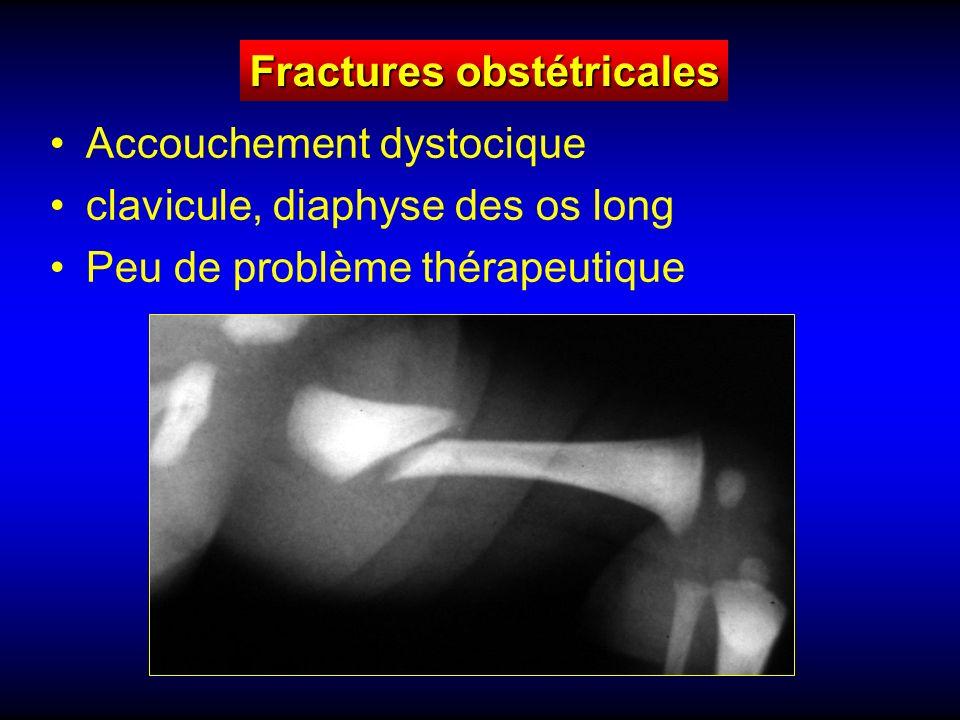 Fractures obstétricales Accouchement dystocique clavicule, diaphyse des os long Peu de problème thérapeutique