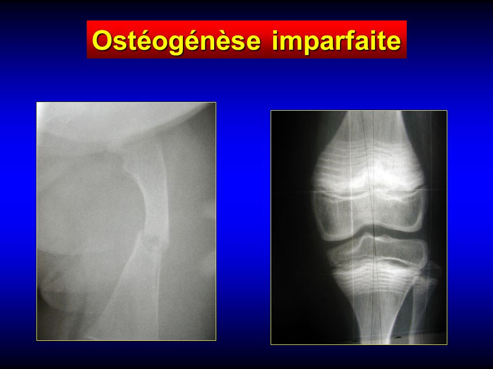 Ostéogénèse imparfaite
