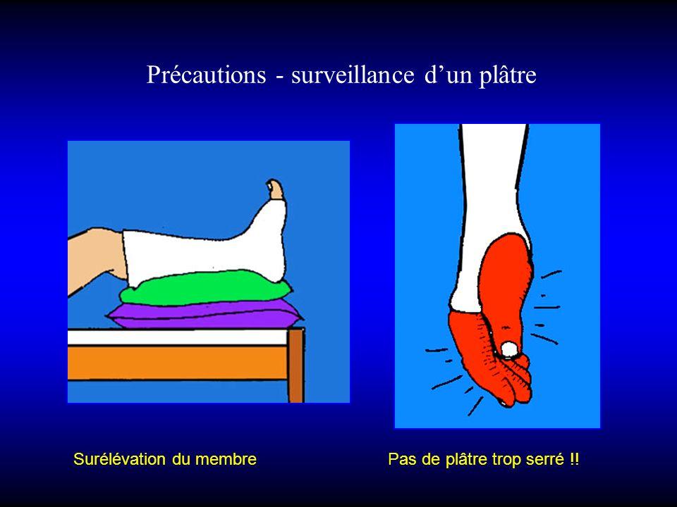 Précautions - surveillance dun plâtre Surélévation du membre Pas de plâtre trop serré !!