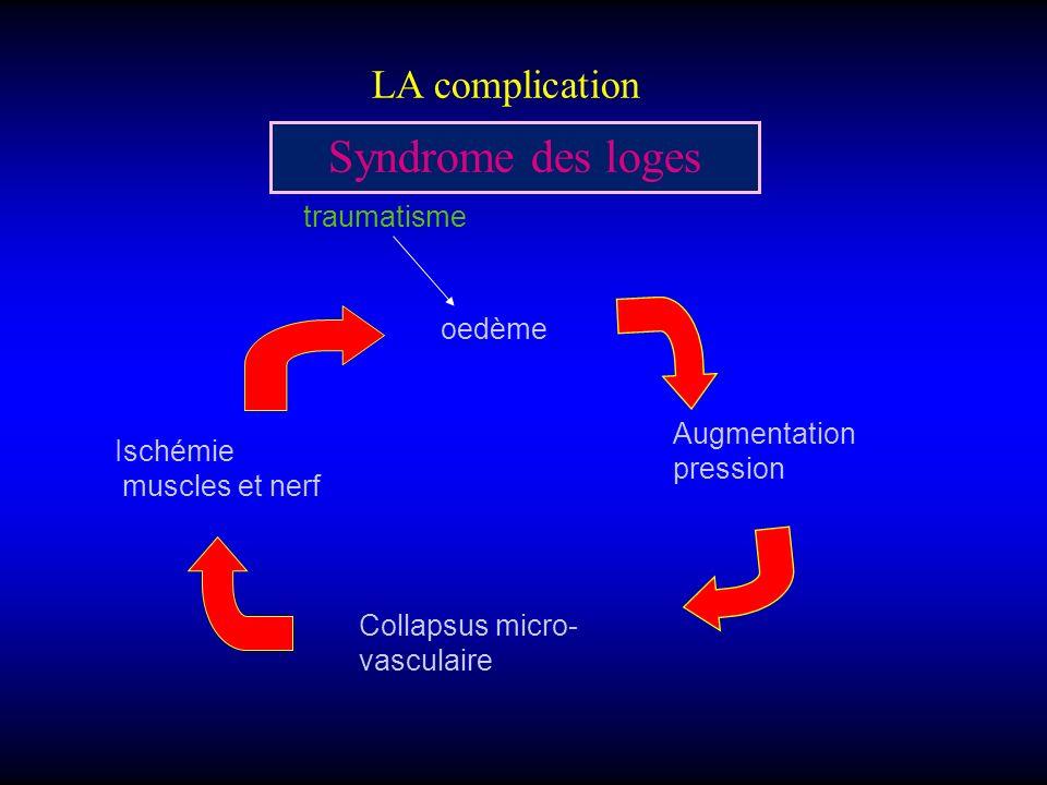 LA complication Syndrome des loges oedème Augmentation pression Collapsus micro- vasculaire Ischémie muscles et nerf traumatisme