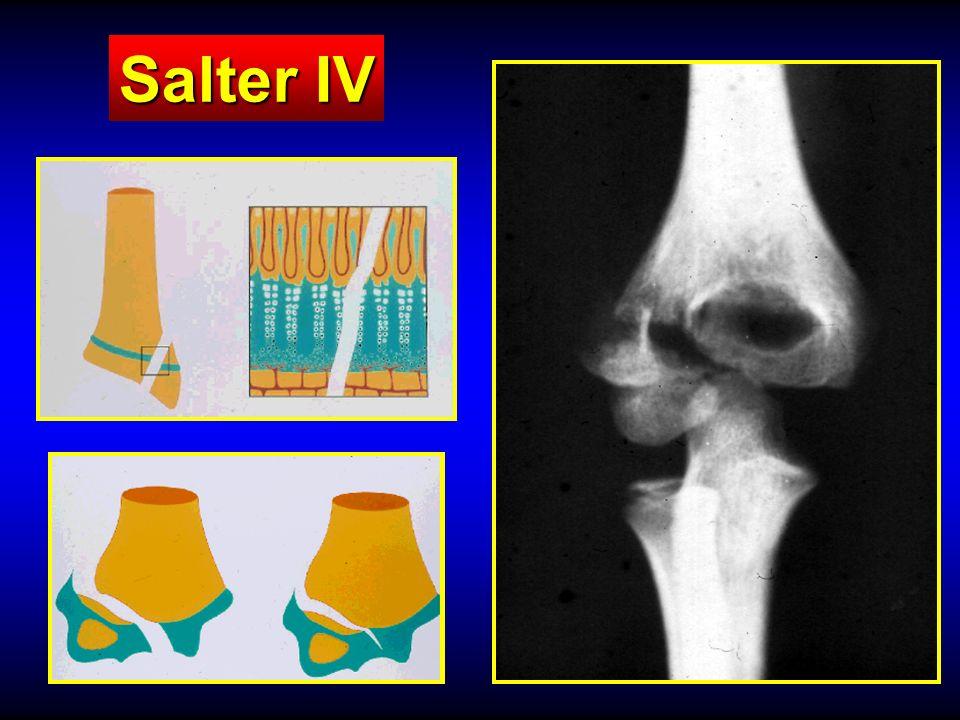 Salter IV