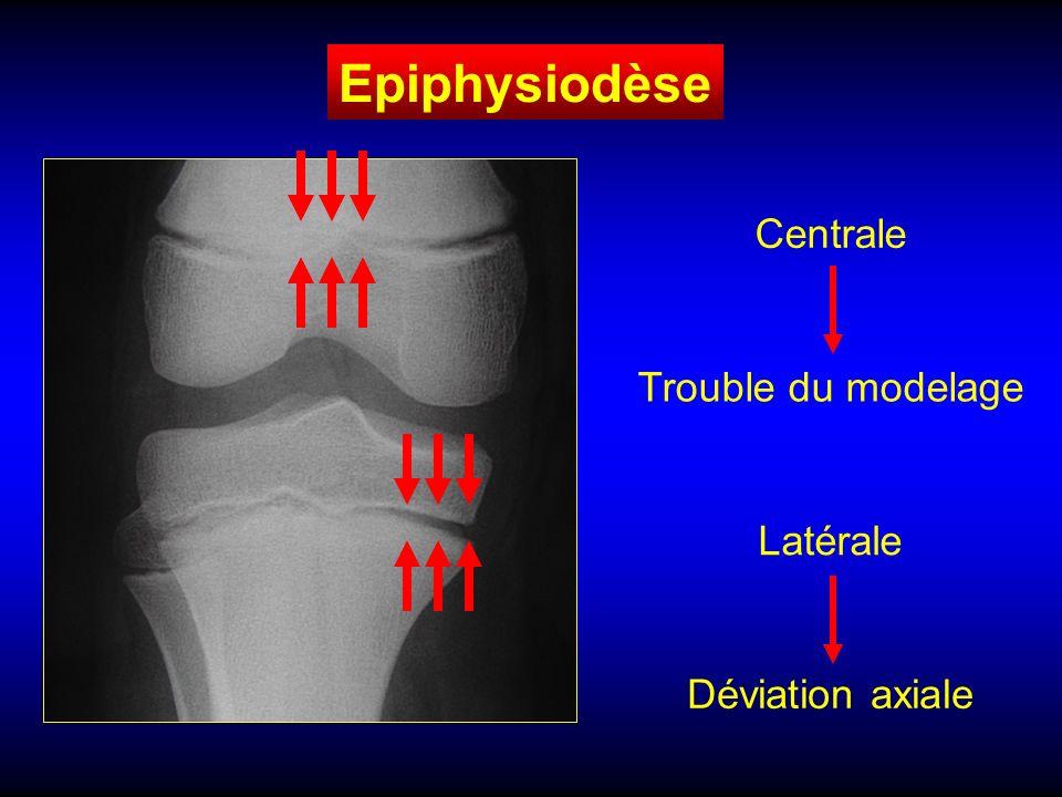 Epiphysiodèse Centrale Trouble du modelage Latérale Déviation axiale