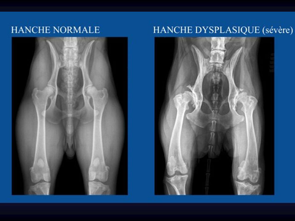 Gros bébé Siège ATCD familiaux Anomalies orthopédiques associées Pied bot, torticolis congénital… LCH : Facteurs de risque
