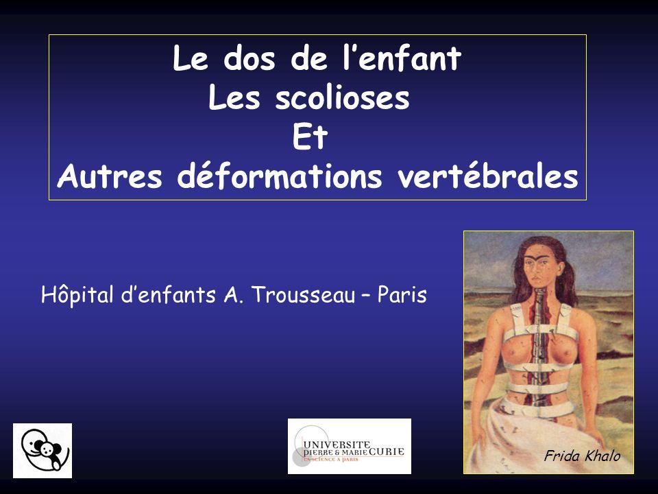 Le dos de lenfant Les scolioses Et Autres déformations vertébrales Hôpital denfants A. Trousseau – Paris Frida Khalo