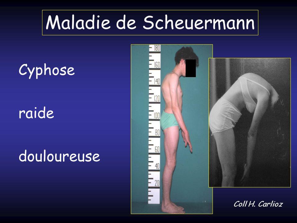 Maladie de Scheuermann Cyphose raide douloureuse Coll H. Carlioz