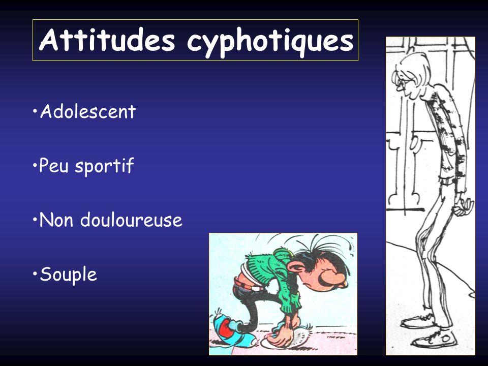 Attitudes cyphotiques Peu sportif Adolescent Non douloureuse Souple