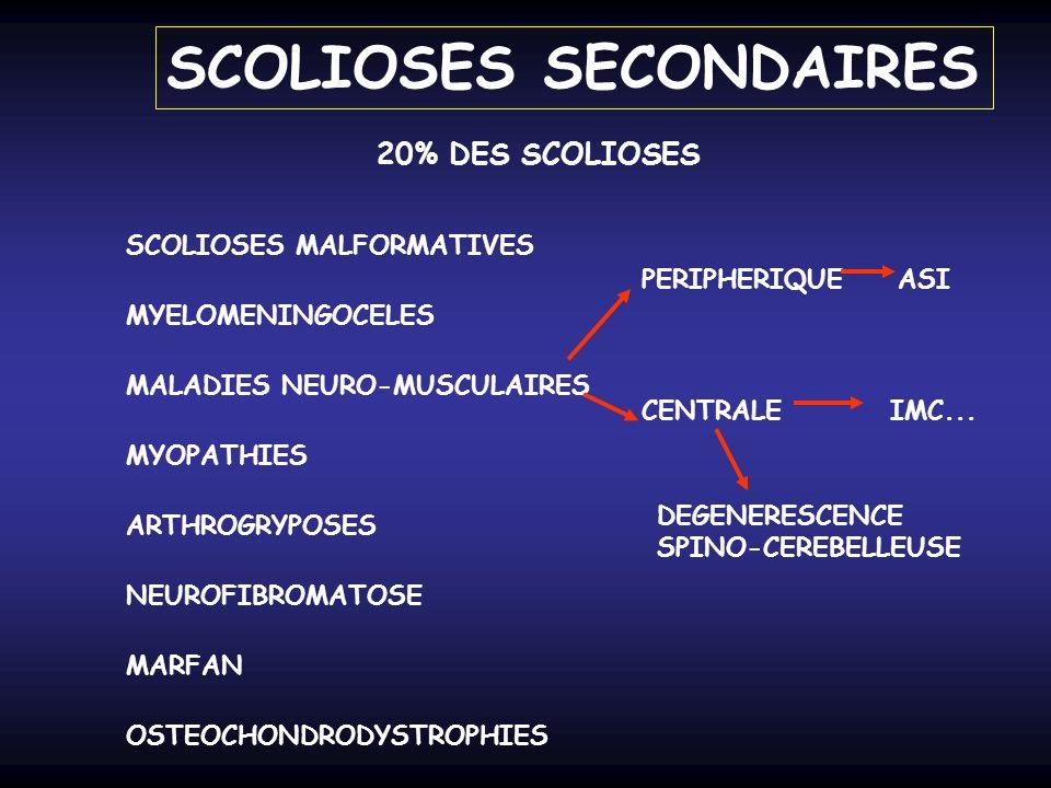 SCOLIOSES SECONDAIRES SCOLIOSES MALFORMATIVES 20% DES SCOLIOSES MYELOMENINGOCELES MALADIES NEURO-MUSCULAIRES PERIPHERIQUEASI CENTRALEIMC... DEGENERESC