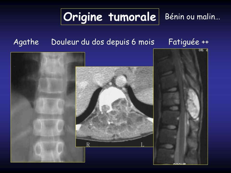 Origine tumorale Bénin ou malin… AgatheDouleur du dos depuis 6 moisFatiguée ++