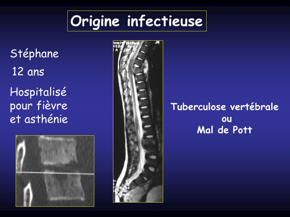 Stéphane 12 ans Hospitalisé pour fièvre et asthénie Origine infectieuse Tuberculose vertébrale ou Mal de Pott