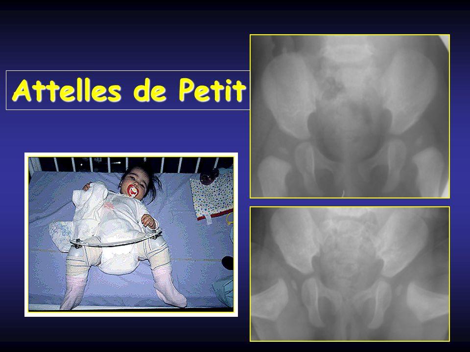 Chirurgie Echec des traitements orthopédiques Réduction chirurgicale Traitement de la dysplasie cotyloidienne résiduelle Ostéotomie de bassin - de fémur