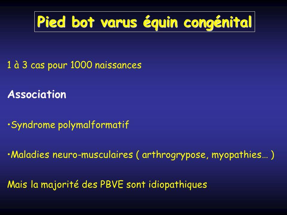 1 à 3 cas pour 1000 naissances Association Syndrome polymalformatif Maladies neuro-musculaires ( arthrogrypose, myopathies… ) Mais la majorité des PBVE sont idiopathiques Pied bot varus équin congénital