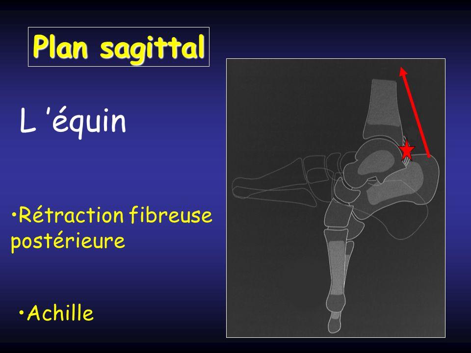 L équin Rétraction fibreuse postérieure Achille Plan sagittal