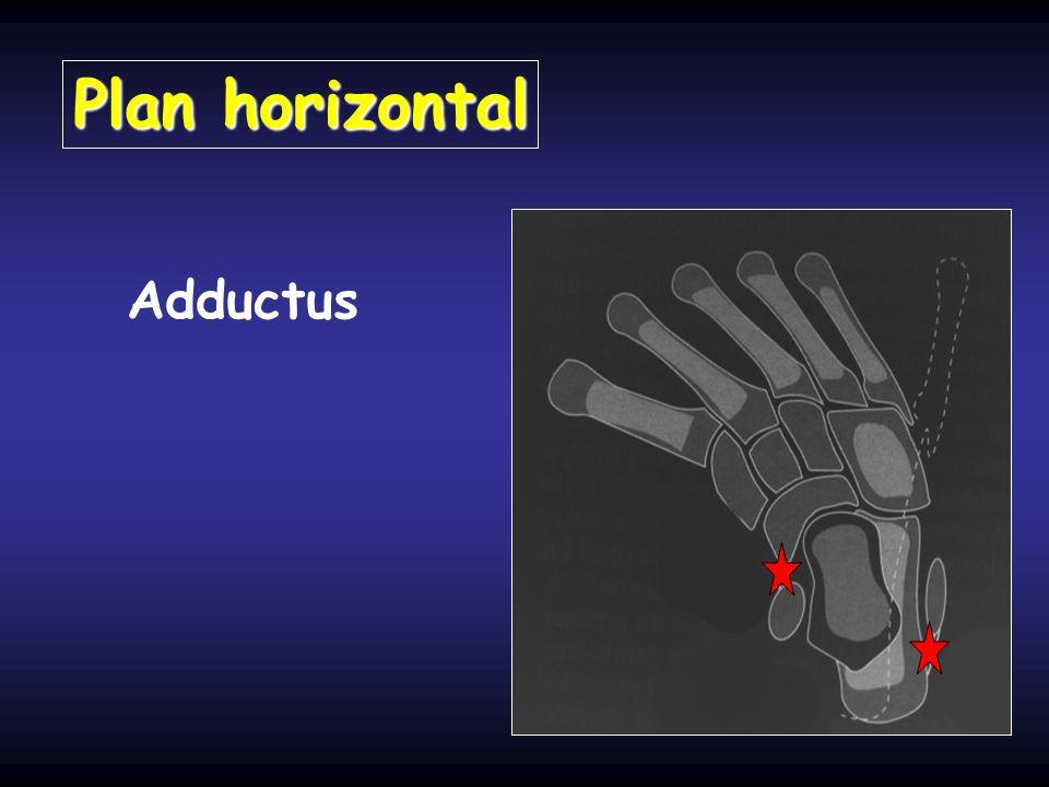 Plan horizontal Adductus