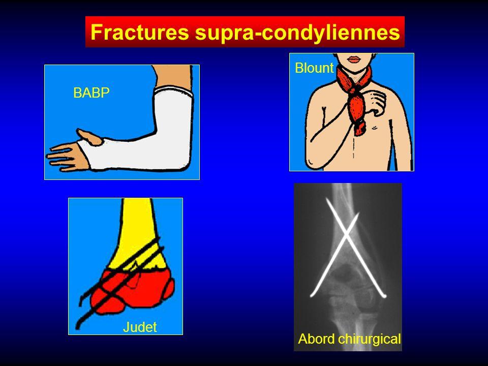 Fracture du quart inférieur des deux os de l avant-bras