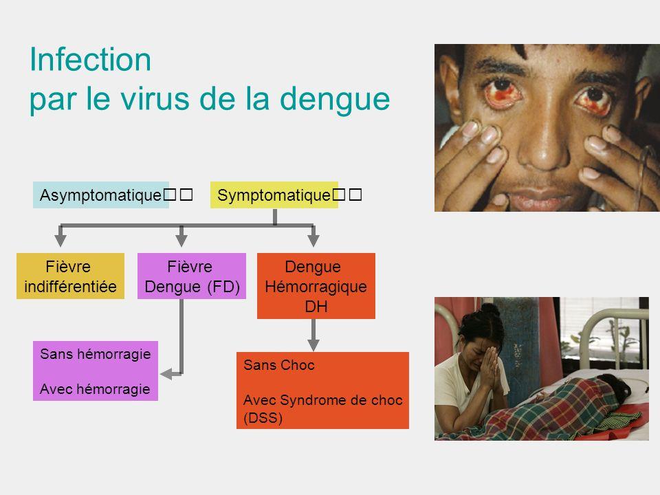 Infection par le virus de la dengue AsymptomatiqueSymptomatique Fièvre indifférentiée Fièvre Dengue (FD) Dengue Hémorragique DH Sans hémorragie Avec h