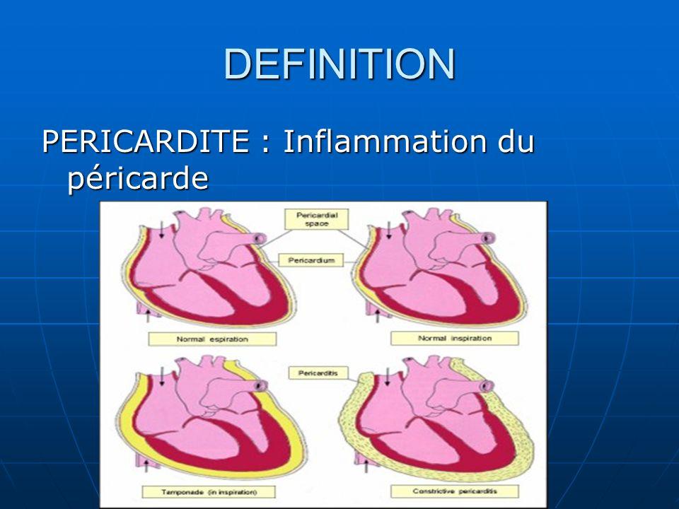 DEFINITION PERICARDITE : Inflammation du péricarde