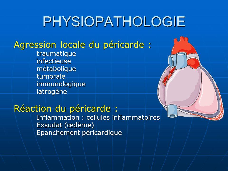 PHYSIOPATHOLOGIE Agression locale du péricarde : traumatiqueinfectieusemétaboliquetumoraleimmunologiqueiatrogène Réaction du péricarde : Inflammation