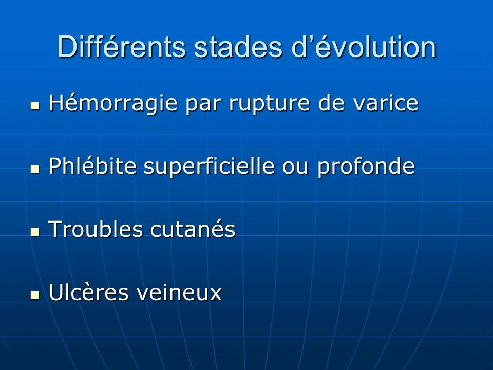 Différents stades dévolution Hémorragie par rupture de varice Hémorragie par rupture de varice Phlébite superficielle ou profonde Phlébite superficiel