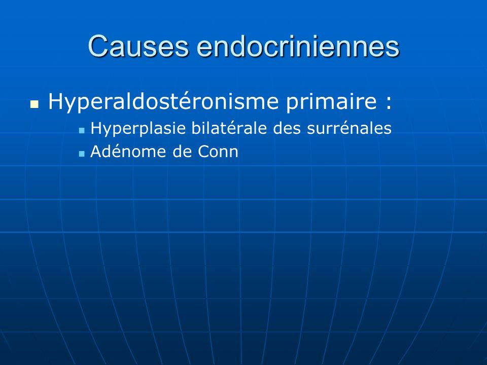Causes endocriniennes Hyperaldostéronisme primaire : Hyperplasie bilatérale des surrénales Adénome de Conn