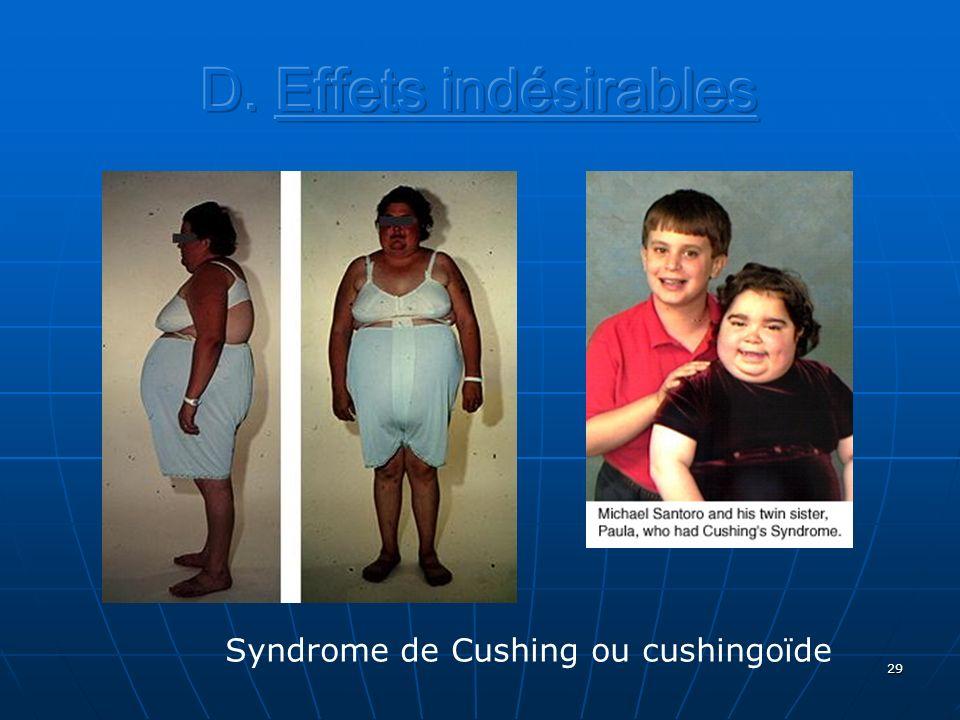 29 Syndrome de Cushing ou cushingoïde