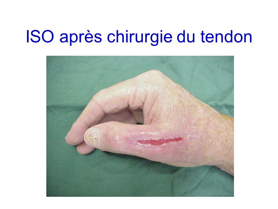 ISO après chirurgie du tendon