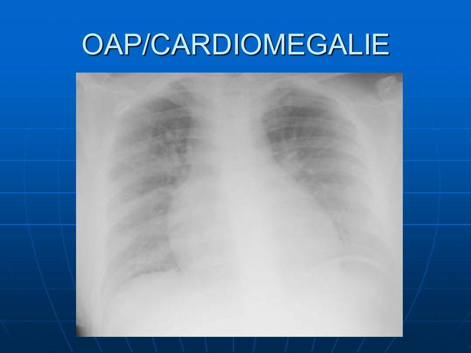 OAP/CARDIOMEGALIE