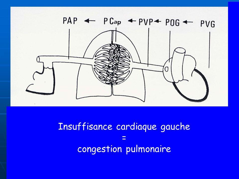 RAPPEL PHYSIOLOGIQUE PRESSION CAPILLAIRE PULMONAIRE tend à faire passer le plasma des capillaire pulmonaire aux alvéoles PRESSION CAPILLAIRE PULMONAIRE tend à faire passer le plasma des capillaire pulmonaire aux alvéoles PRESSION ONCOTIQUE (liée à la présence de protéine dans le plasma) tend à maintenir le plasma dans les capillaire PRESSION ONCOTIQUE (liée à la présence de protéine dans le plasma) tend à maintenir le plasma dans les capillaire Donc pour éviter le passage de plasma dans les alvéoles pulmonaires il faut que la pression capillaire pulmonaire soit inférieure à la pression oncotique Donc pour éviter le passage de plasma dans les alvéoles pulmonaires il faut que la pression capillaire pulmonaire soit inférieure à la pression oncotique