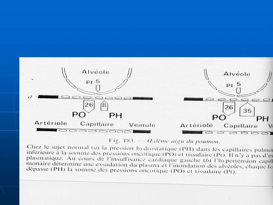 PHYSIOPATHOLOGIE Augmentation de la pression capillaire pulmonaire au-delà de la pression oncotique entraînant un passage de plasma des capillaires aux alvéoles pulmonaires.