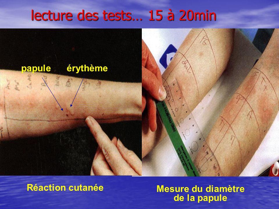 lecture des tests… 15 à 20min Mesure du diamètre de la papule Réaction cutanée papule érythème