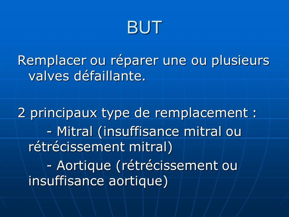BUT Remplacer ou réparer une ou plusieurs valves défaillante. 2 principaux type de remplacement : - Mitral (insuffisance mitral ou rétrécissement mitr