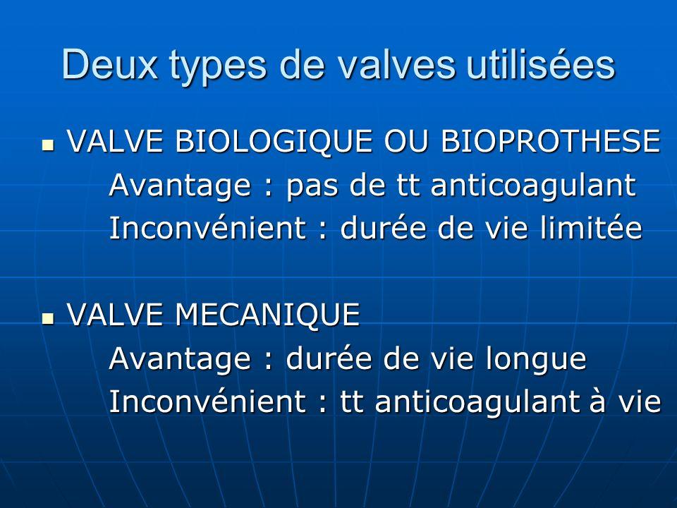 Deux types de valves utilisées VALVE BIOLOGIQUE OU BIOPROTHESE VALVE BIOLOGIQUE OU BIOPROTHESE Avantage : pas de tt anticoagulant Inconvénient : durée