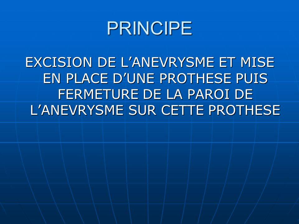 PRINCIPE EXCISION DE LANEVRYSME ET MISE EN PLACE DUNE PROTHESE PUIS FERMETURE DE LA PAROI DE LANEVRYSME SUR CETTE PROTHESE