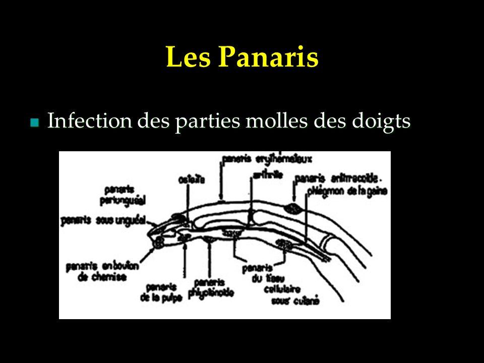 Les Panaris Infection des parties molles des doigts Infection des parties molles des doigts