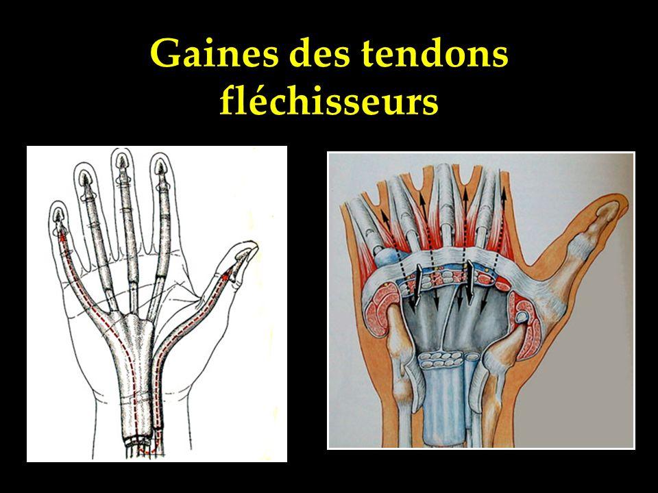 Gaines des tendons fléchisseurs