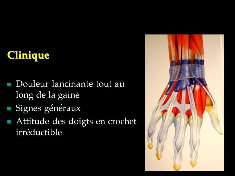 Clinique Douleur lancinante tout au long de la gaine Douleur lancinante tout au long de la gaine Signes généraux Signes généraux Attitude des doigts e