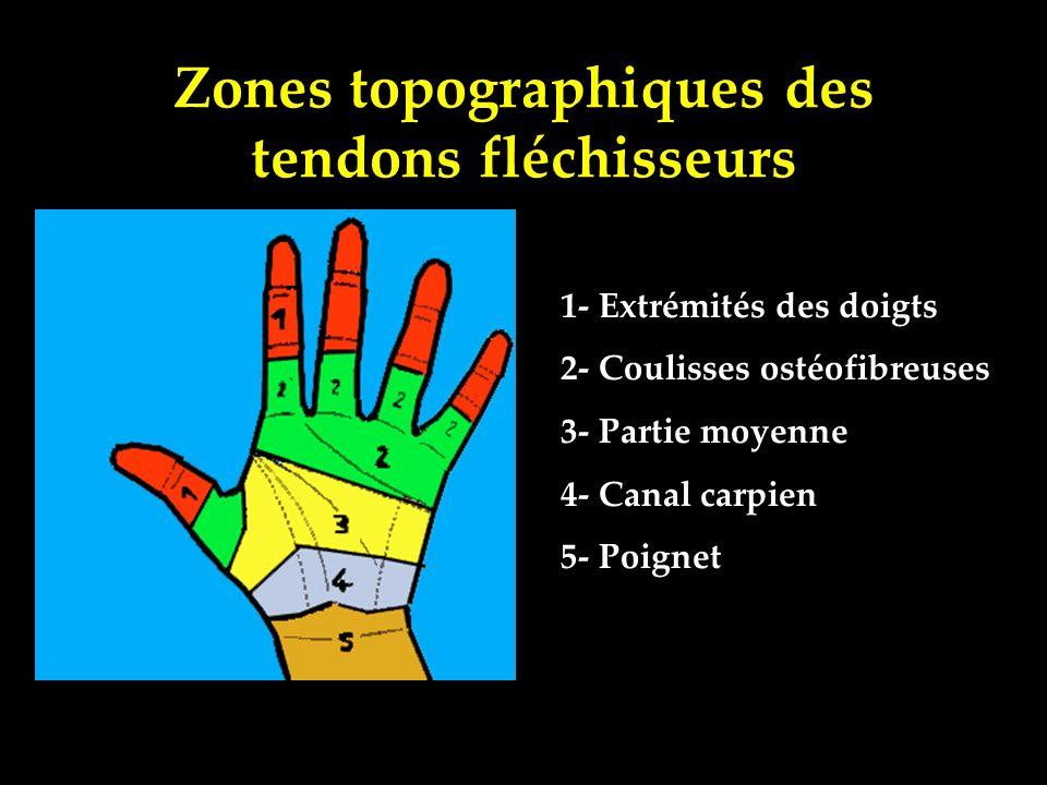 Zones topographiques des tendons fléchisseurs 1- Extrémités des doigts 2- Coulisses ostéofibreuses 3- Partie moyenne 4- Canal carpien 5- Poignet