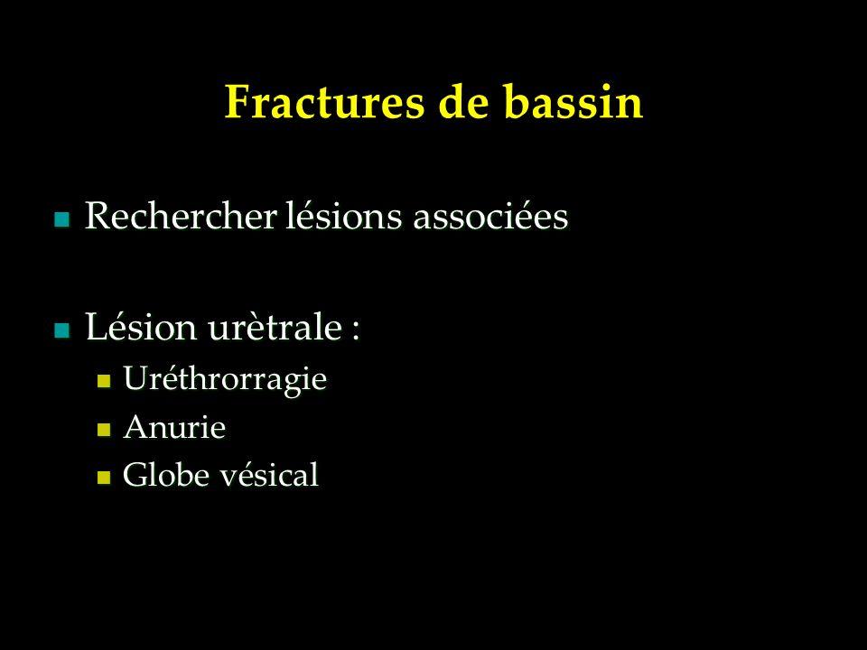 Rechercher lésions associées Rechercher lésions associées Lésion urètrale : Lésion urètrale : Uréthrorragie Uréthrorragie Anurie Anurie Globe vésical