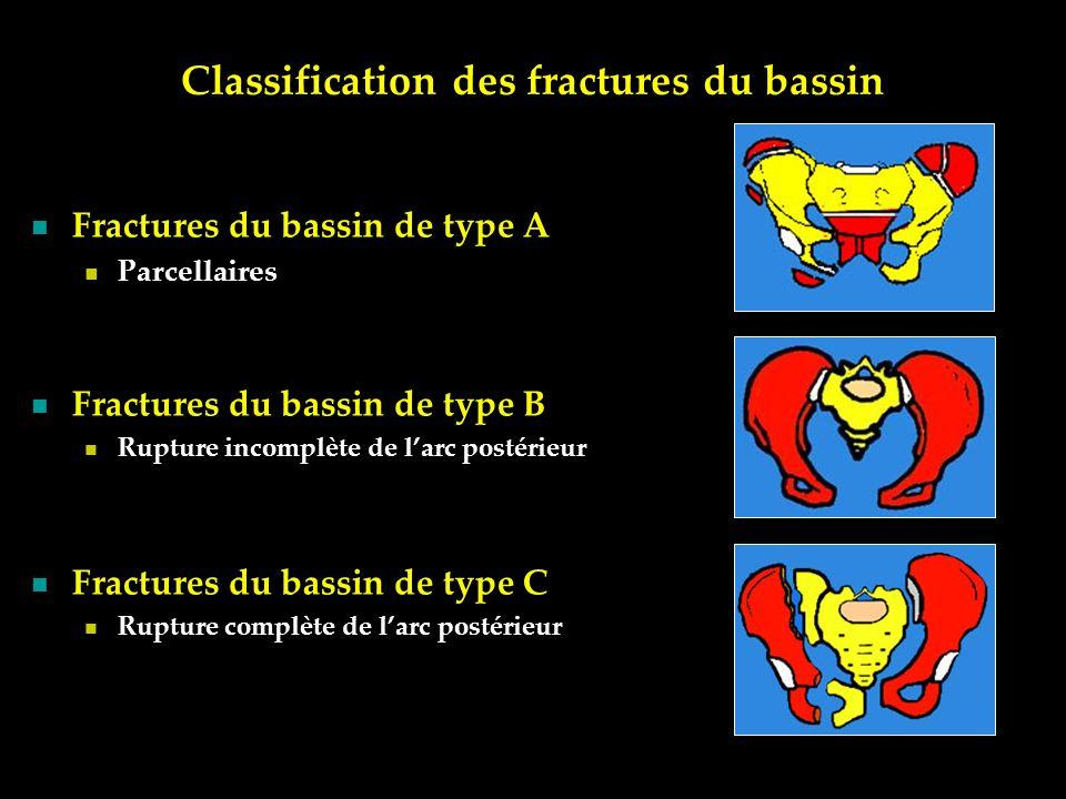 Classification des fractures du bassin Fractures du bassin de type A Parcellaires Fractures du bassin de type B Rupture incomplète de larc postérieur