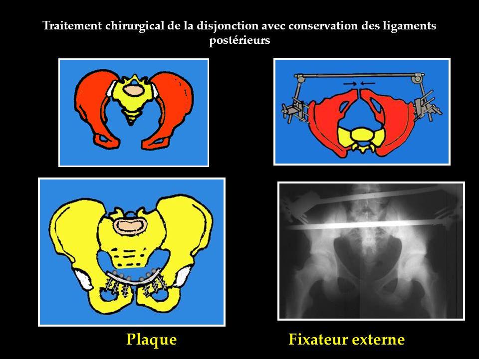 Plaque Fixateur externe Traitement chirurgical de la disjonction avec conservation des ligaments postérieurs