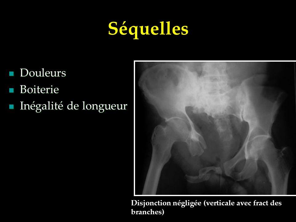 Séquelles Douleurs Douleurs Boiterie Boiterie Inégalité de longueur Inégalité de longueur Disjonction négligée (verticale avec fract des branches)
