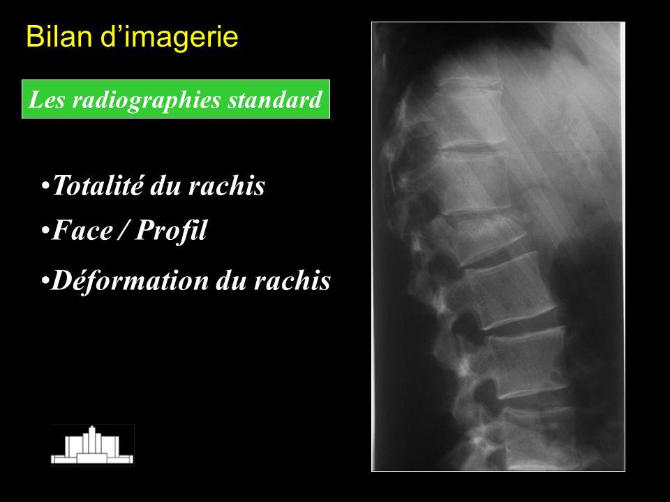 Les radiographies standard Totalité du rachis Face / Profil Déformation du rachis Bilan dimagerie
