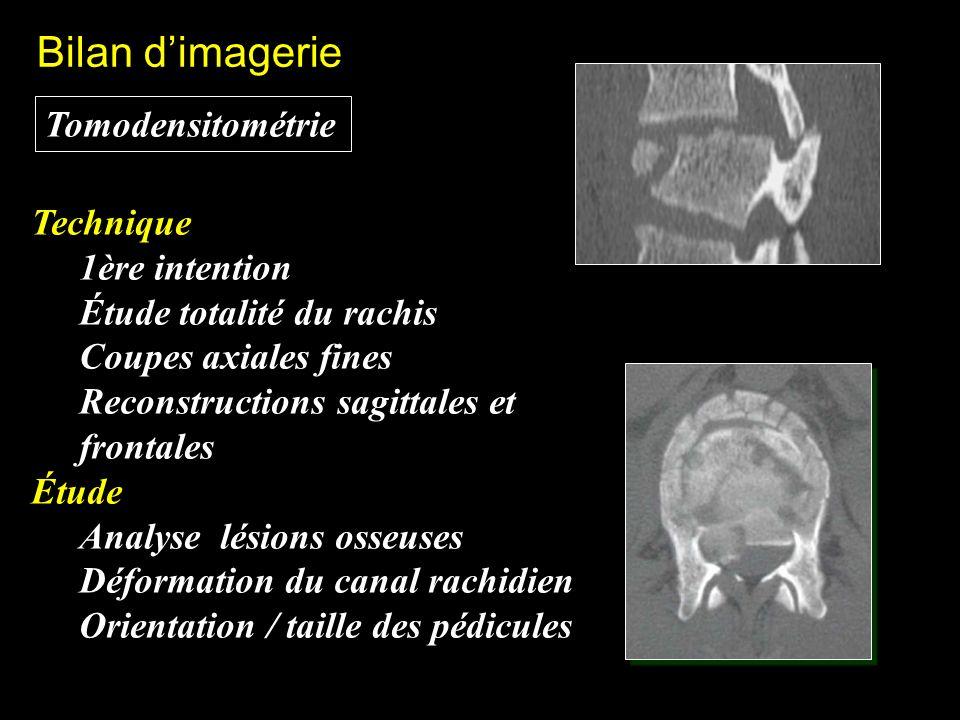 Tomodensitométrie Bilan dimagerie Technique 1ère intention Étude totalité du rachis Coupes axiales fines Reconstructions sagittales et frontales Étude