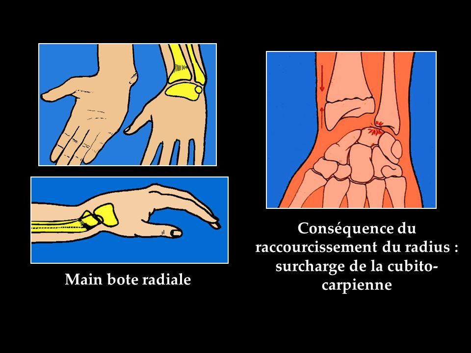 Conséquence du raccourcissement du radius : surcharge de la cubito- carpienne Main bote radiale
