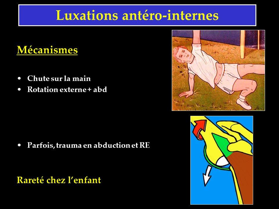 Luxations antéro-internes Mécanismes Chute sur la main Rotation externe + abd Parfois, trauma en abduction et RE Rareté chez lenfant