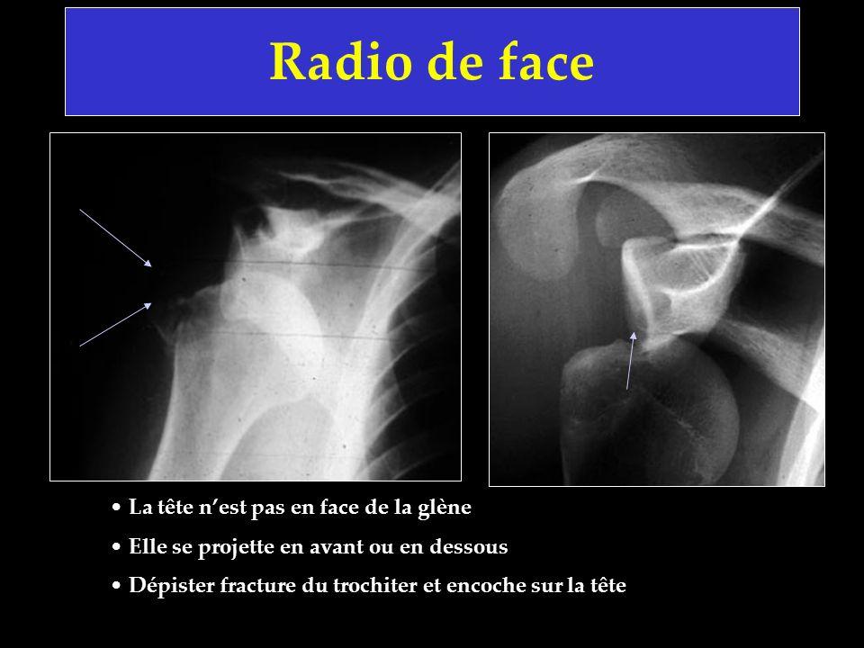 Radio de face La tête nest pas en face de la glène Elle se projette en avant ou en dessous Dépister fracture du trochiter et encoche sur la tête
